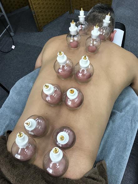 紀元前600年から受け継がれる施術。吸玉療法の6つの効果とは?