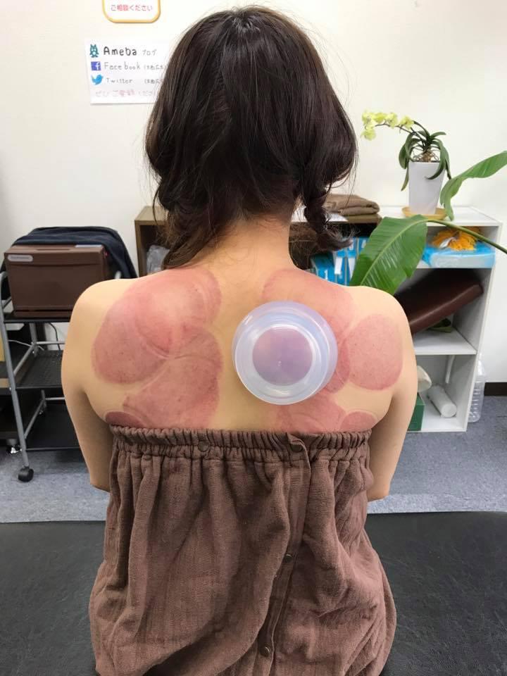 筋膜の癒着をとる!ファンクショナルカッピングを受けられた患者さまのお声を頂きました!