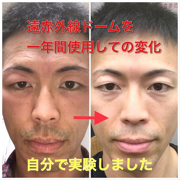 【自分で実験!】遠赤外線ドームを1年間使用すると、肌がどう変化するのか?