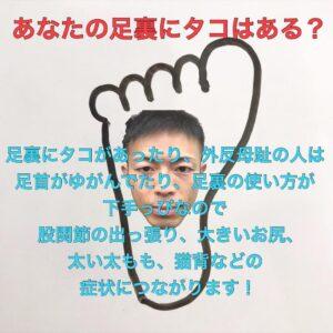 あなたの足裏にはタコがありますか?タコが及ぼす身体への影響とは?